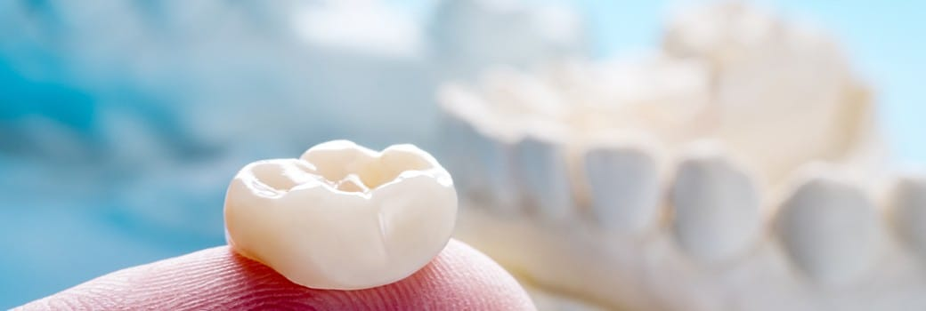 Dental crown restoration in place over model tooth