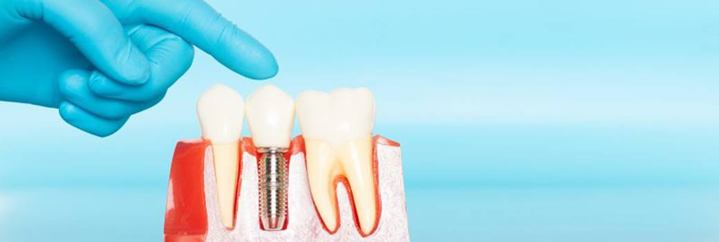 Dentist pointing to model of dental implants in Greensboro