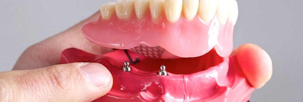 close up of hand holding a model of an implant-retained denture