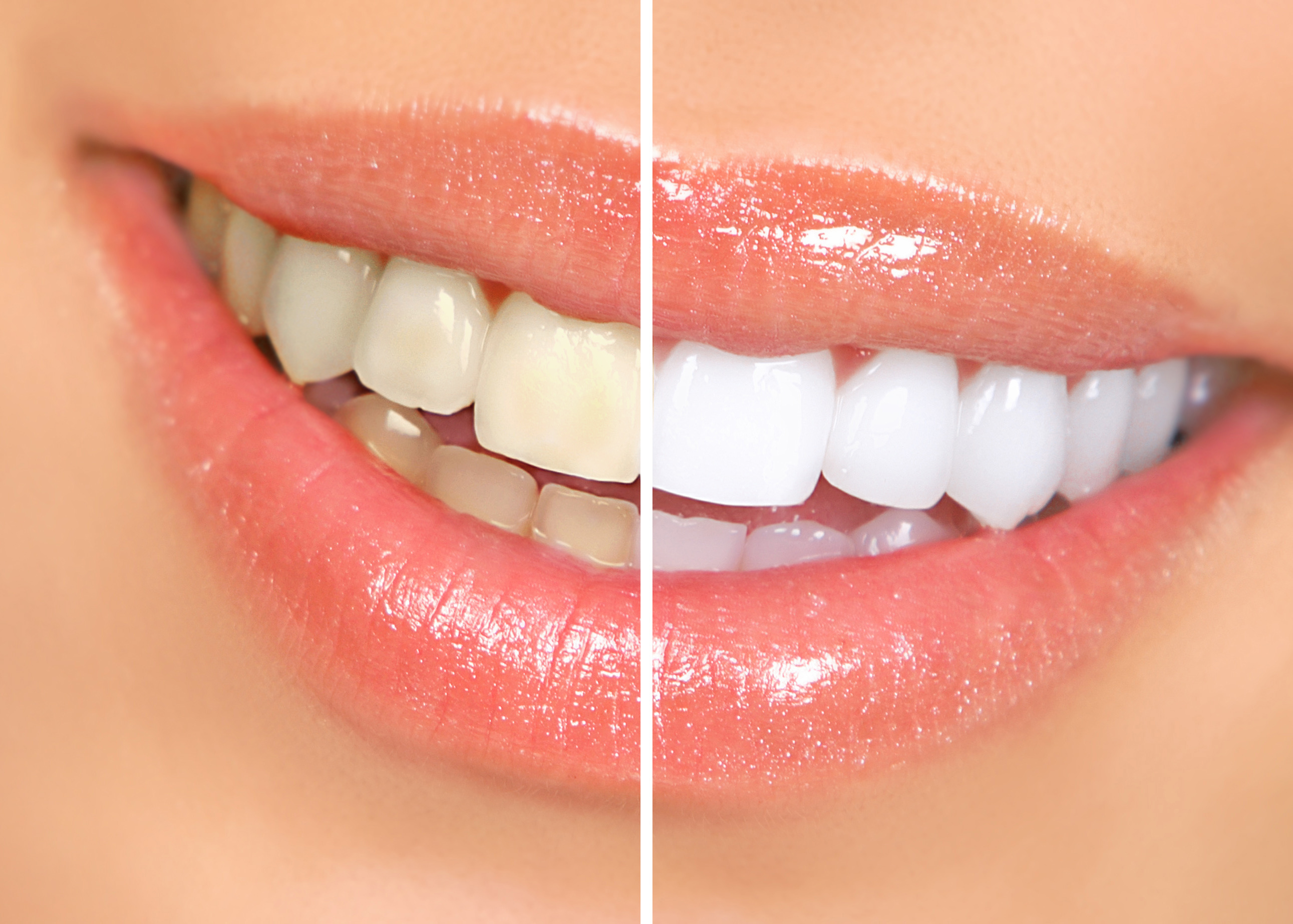 What To Eat What Not To Eat After Teeth Whitening In Greensboro