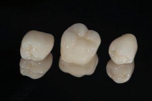 three dental crowns against black background
